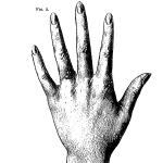 Ce qu'on lit dans la main, 1906